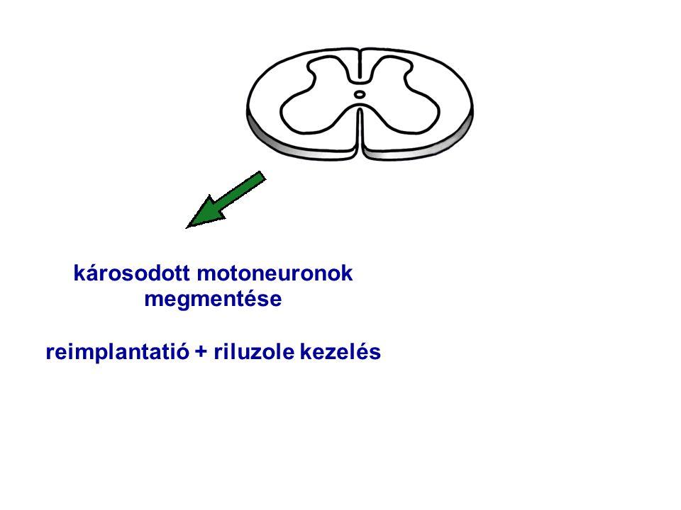 károsodott motoneuronok megmentése reimplantatió + riluzole kezelés