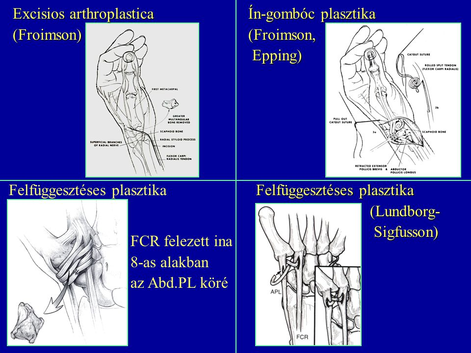 Excisios arthroplastica