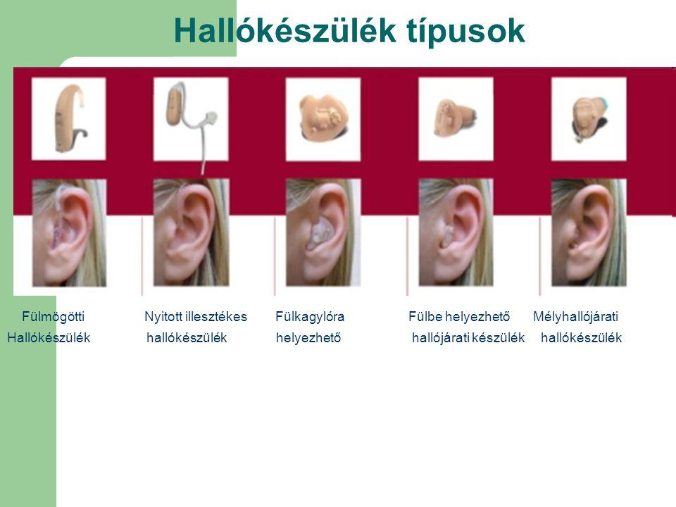 Hallókészülék típusok