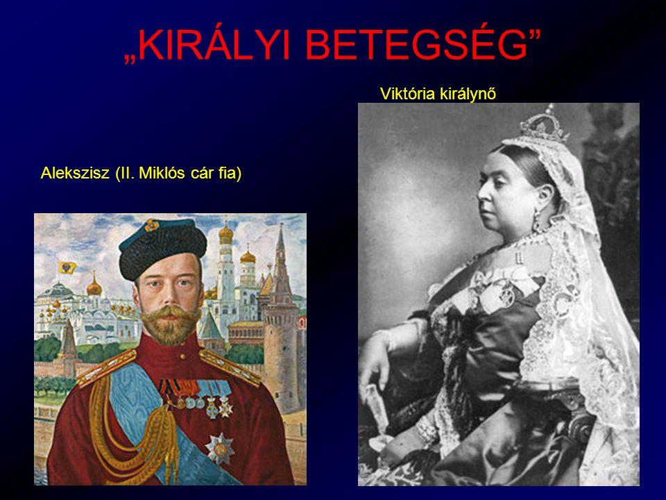 """""""KIRÁLYI BETEGSÉG Viktória királynő Alekszisz (II. Miklós cár fia)"""