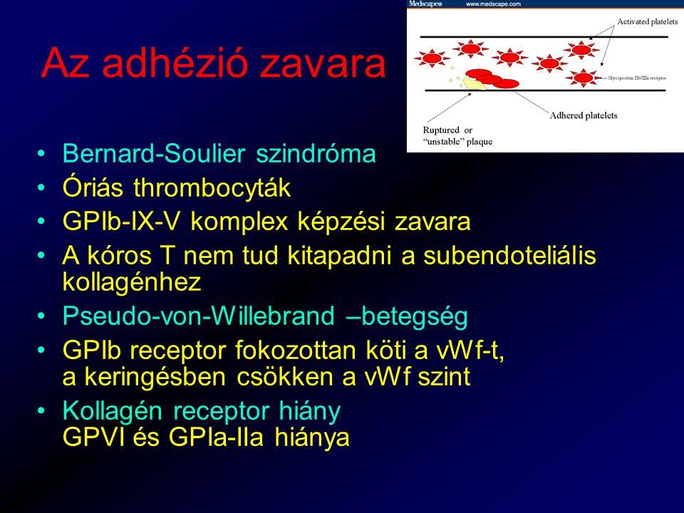 Az adhézió zavara Bernard-Soulier szindróma Óriás thrombocyták