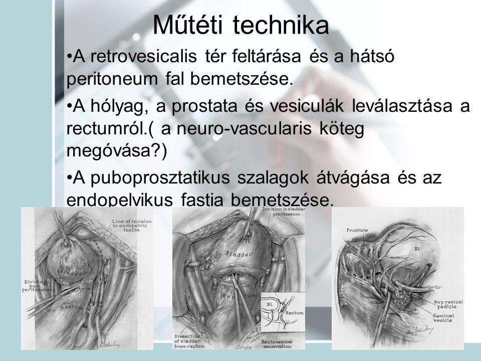 Műtéti technika A retrovesicalis tér feltárása és a hátsó peritoneum fal bemetszése.