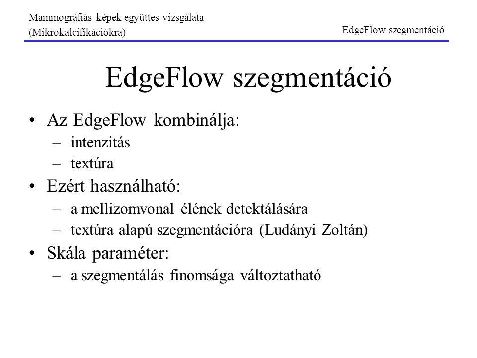 EdgeFlow szegmentáció