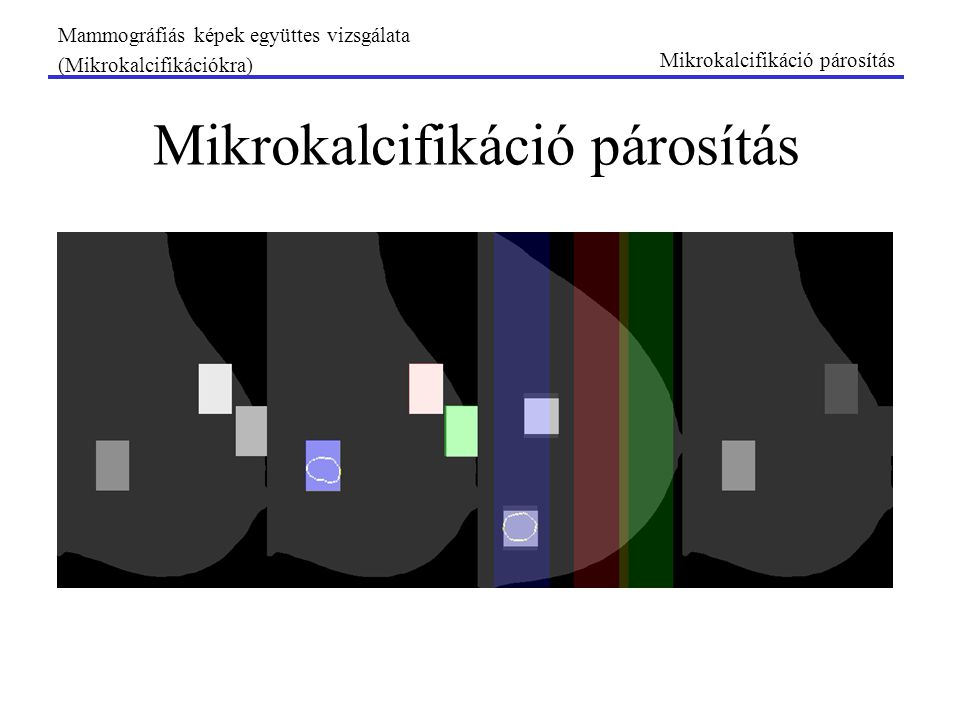 Mikrokalcifikáció párosítás