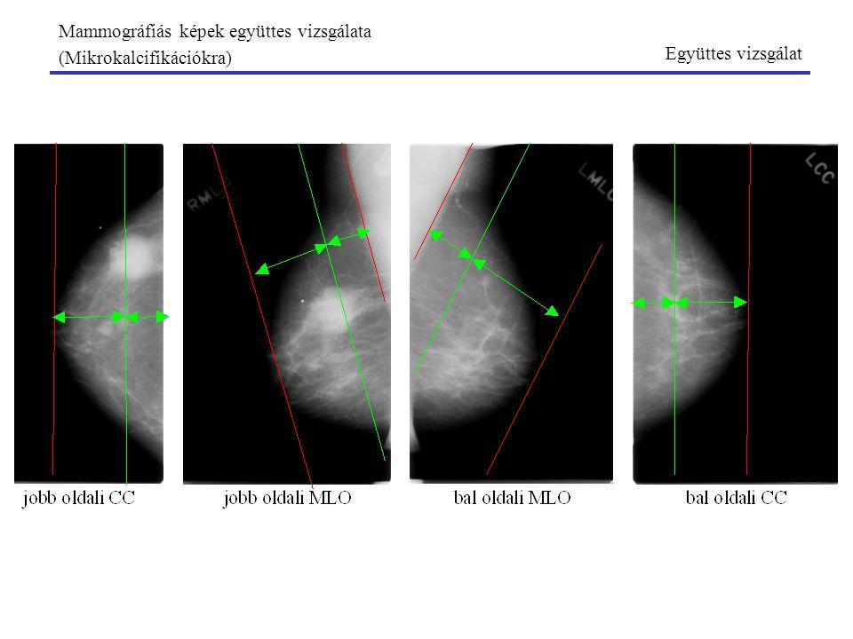 Mammográfiás képek együttes vizsgálata