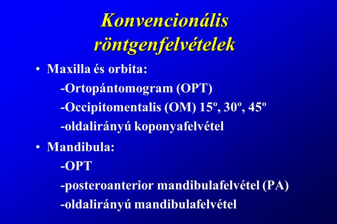 Konvencionális röntgenfelvételek