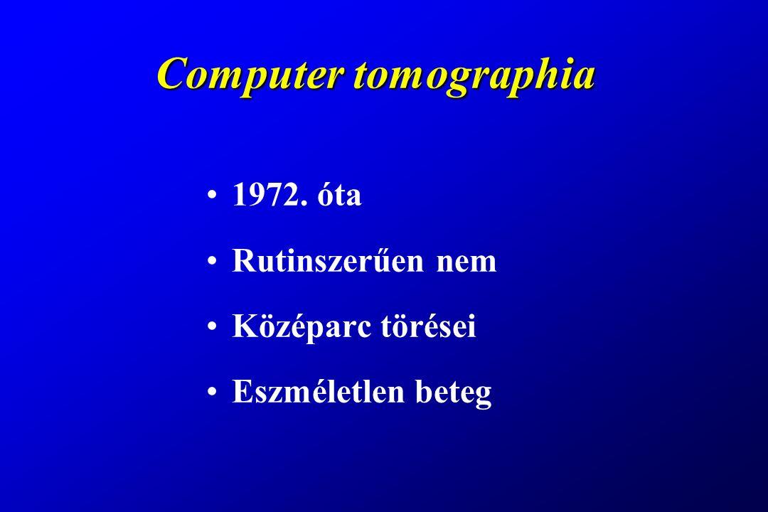Computer tomographia 1972. óta Rutinszerűen nem Középarc törései