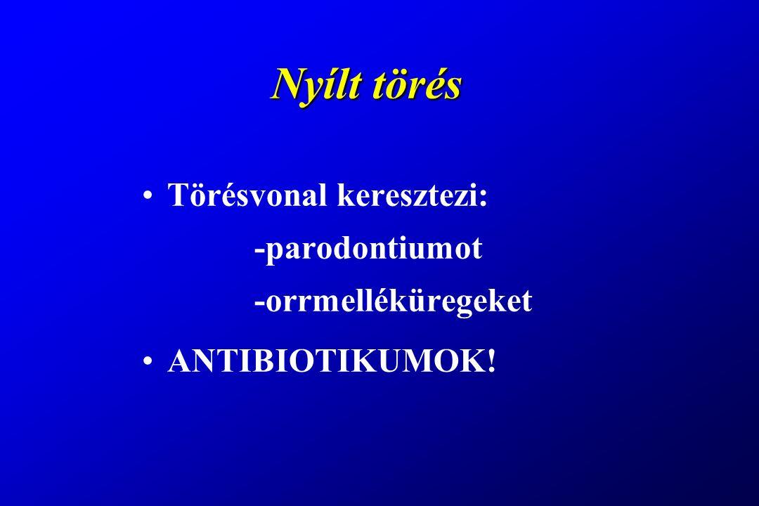 Nyílt törés Törésvonal keresztezi: -parodontiumot -orrmelléküregeket