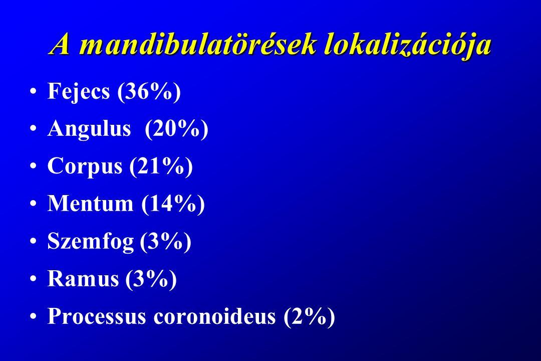 A mandibulatörések lokalizációja