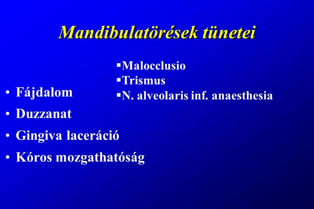 Mandibulatörések tünetei