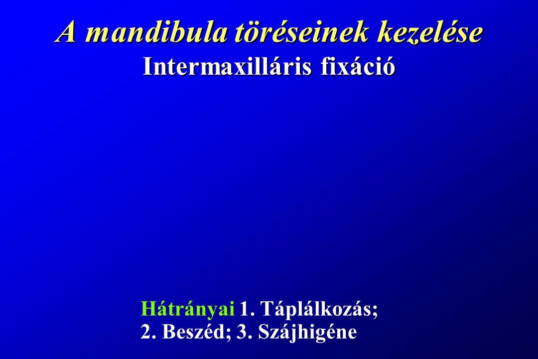 A mandibula töréseinek kezelése Intermaxilláris fixáció