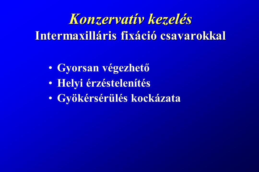 Konzervatív kezelés Intermaxilláris fixáció csavarokkal
