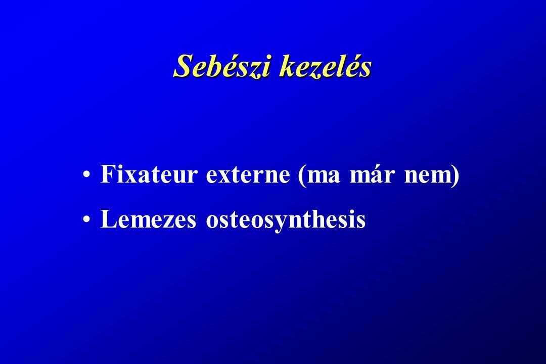 Sebészi kezelés Fixateur externe (ma már nem) Lemezes osteosynthesis