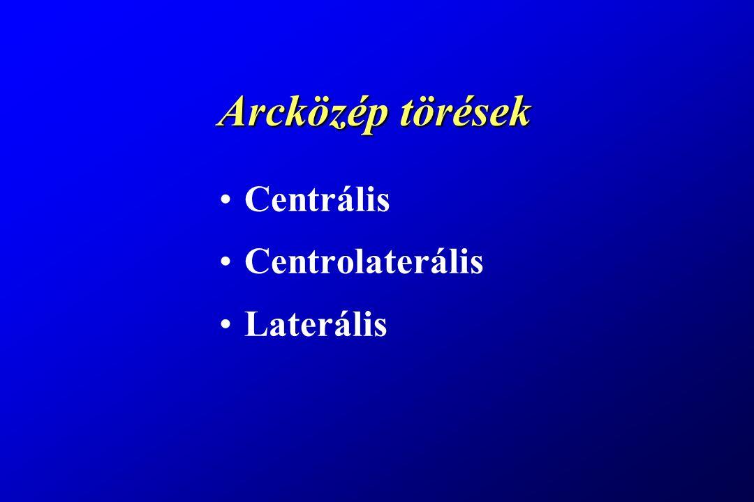 Arcközép törések Centrális Centrolaterális Laterális