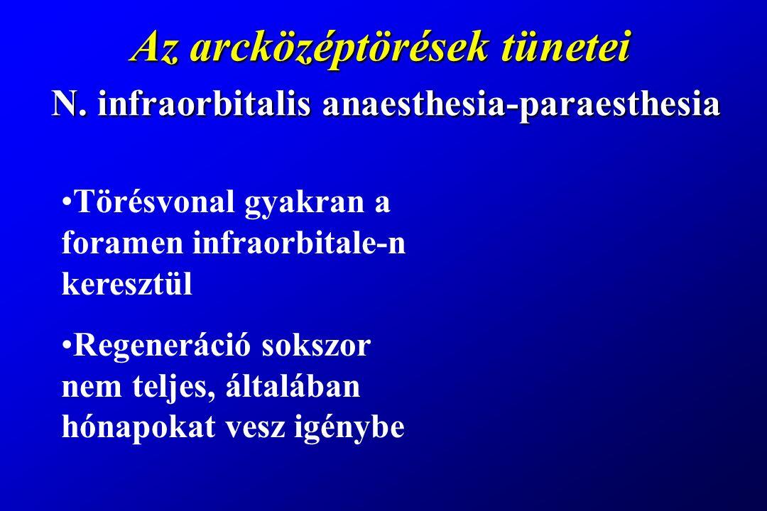Az arcközéptörések tünetei N. infraorbitalis anaesthesia-paraesthesia