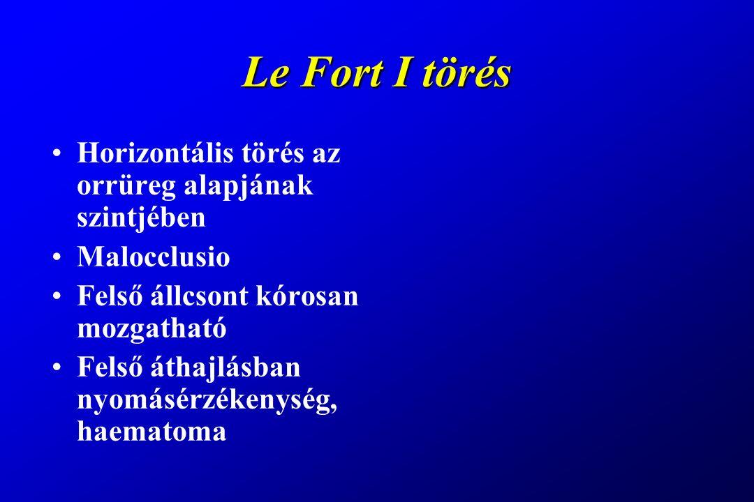 Le Fort I törés Horizontális törés az orrüreg alapjának szintjében