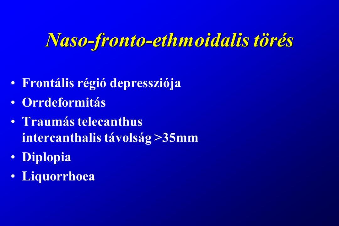 Naso-fronto-ethmoidalis törés