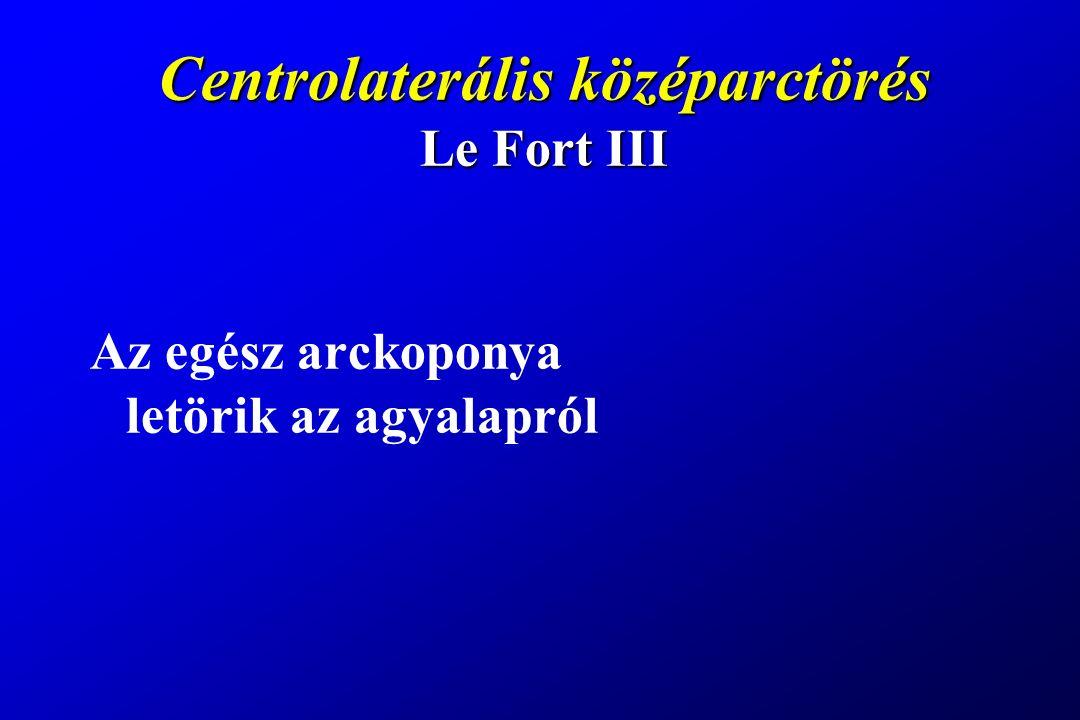 Centrolaterális középarctörés Le Fort III