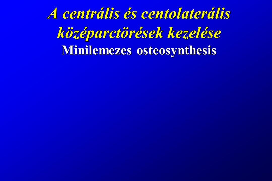 A centrális és centolaterális középarctörések kezelése Minilemezes osteosynthesis