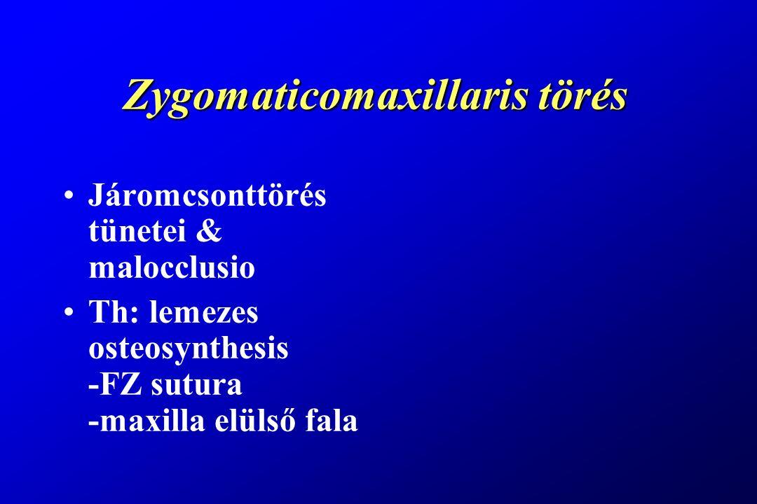 Zygomaticomaxillaris törés