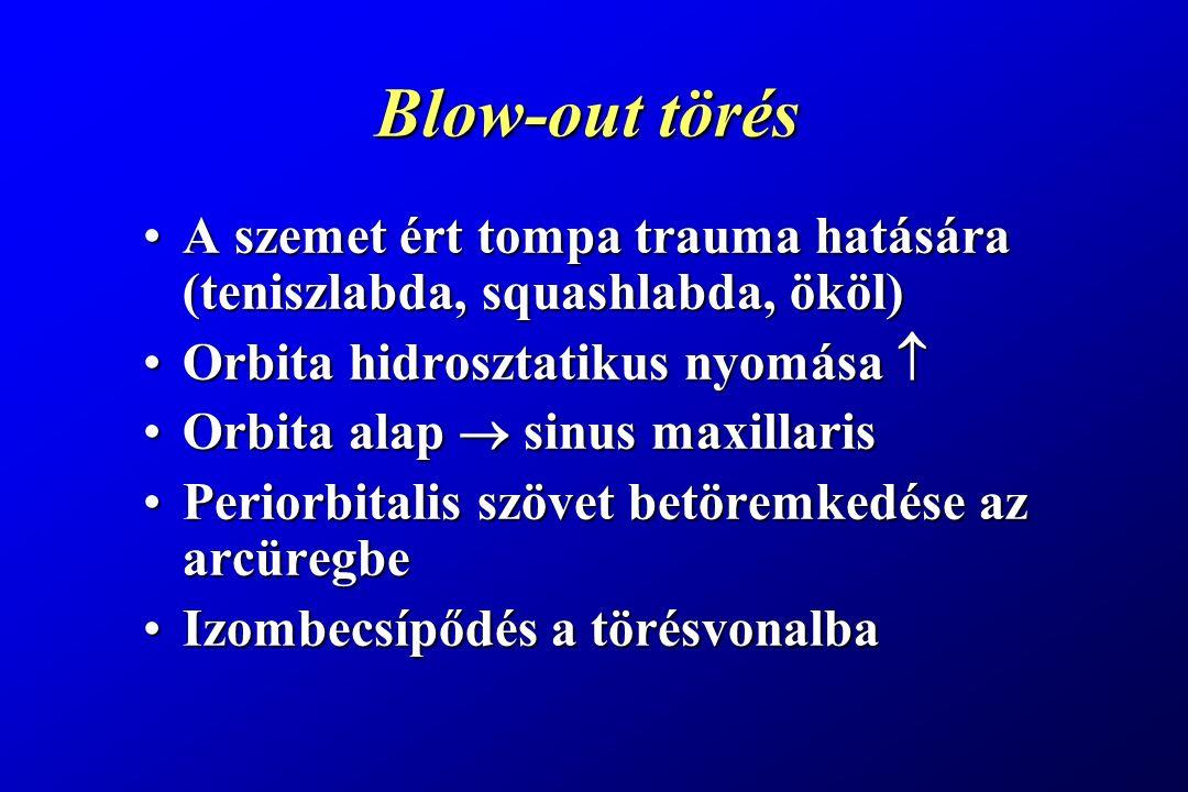 Blow-out törés A szemet ért tompa trauma hatására (teniszlabda, squashlabda, ököl) Orbita hidrosztatikus nyomása 