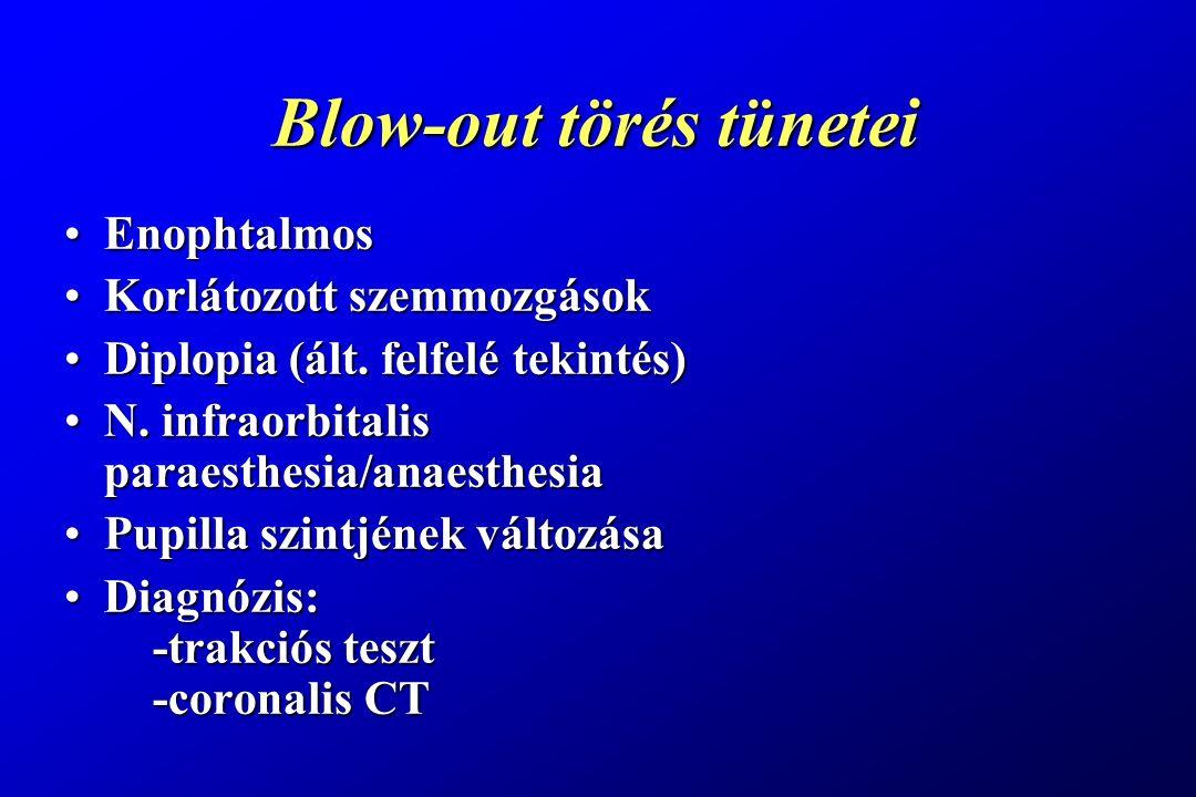 Blow-out törés tünetei