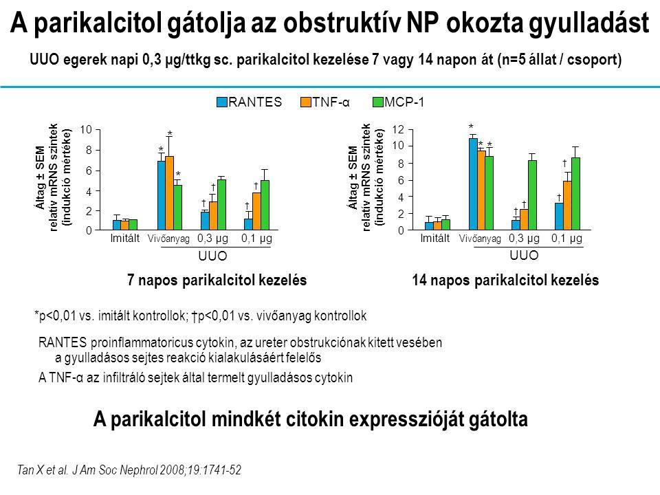 A parikalcitol gátolja az obstruktív NP okozta gyulladást