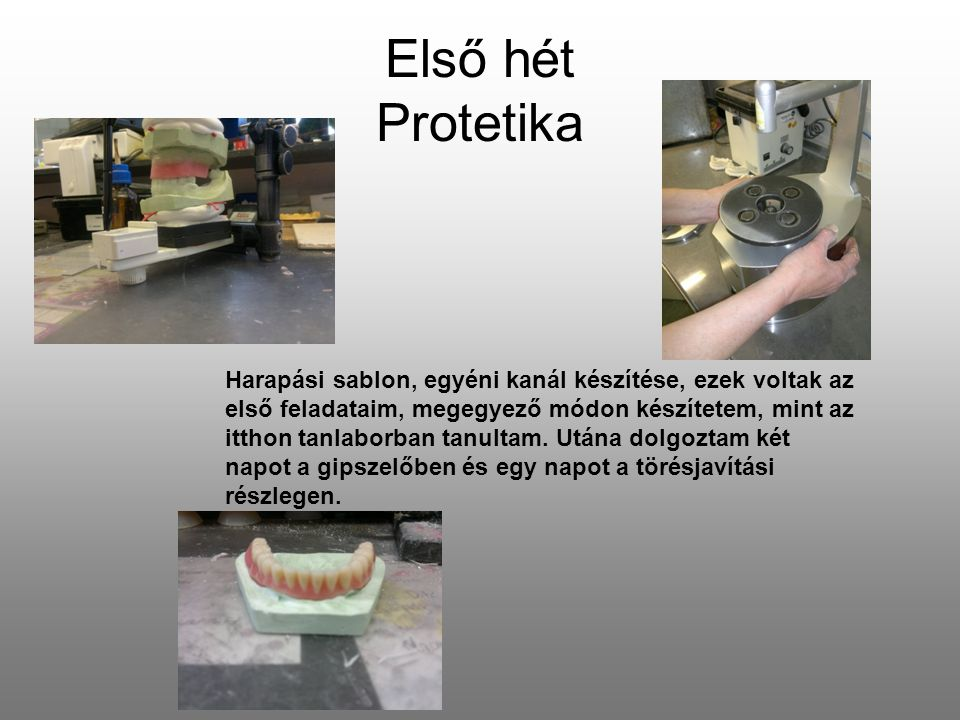 Első hét Protetika
