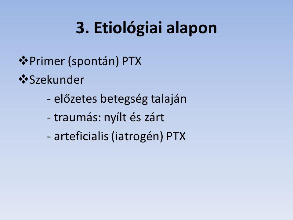 3. Etiológiai alapon Primer (spontán) PTX Szekunder