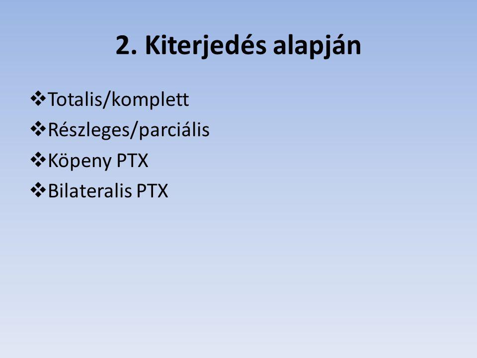 2. Kiterjedés alapján Totalis/komplett Részleges/parciális Köpeny PTX