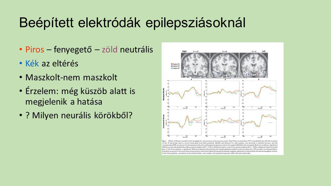 Beépített elektródák epilepsziásoknál
