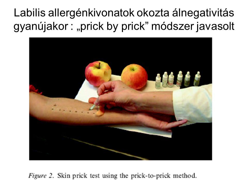 """Labilis allergénkivonatok okozta álnegativitás gyanújakor : """"prick by prick módszer javasolt"""