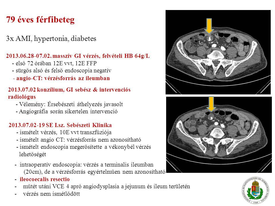 79 éves férfibeteg 3x AMI, hypertonia, diabetes 2013. 06. 28-07. 02