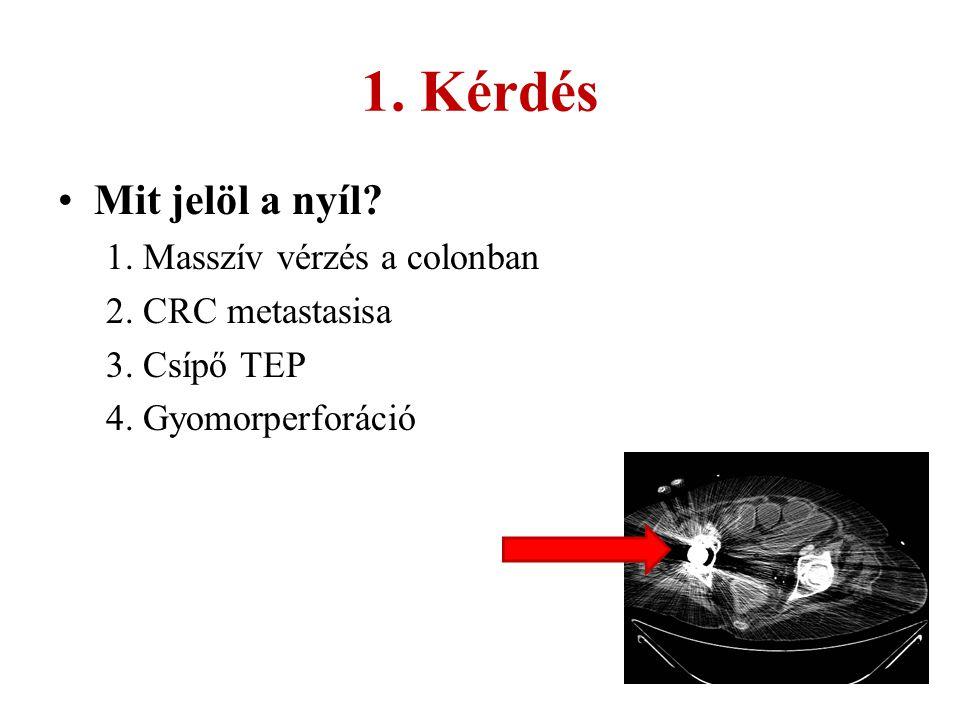 1. Kérdés Mit jelöl a nyíl 1. Masszív vérzés a colonban