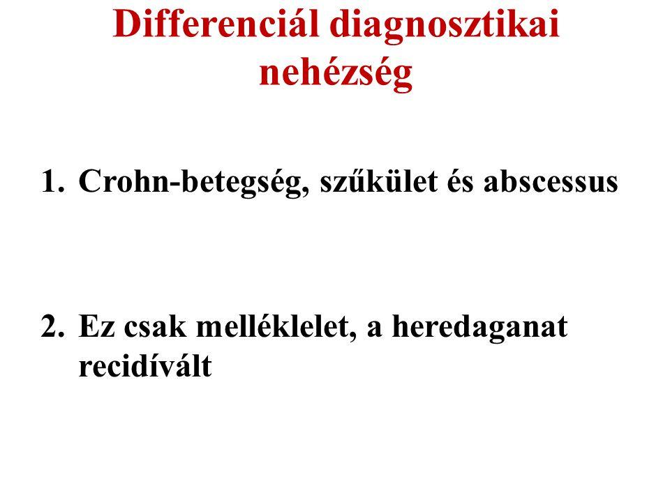 Differenciál diagnosztikai nehézség