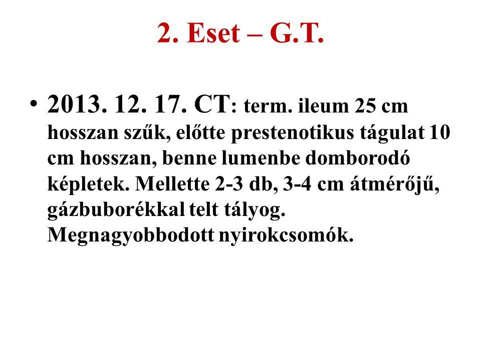 2. Eset – G.T.