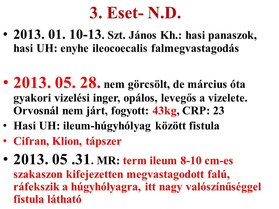 3. Eset- N.D. 2013. 01. 10-13. Szt. János Kh.: hasi panaszok, hasi UH: enyhe ileocoecalis falmegvastagodás.