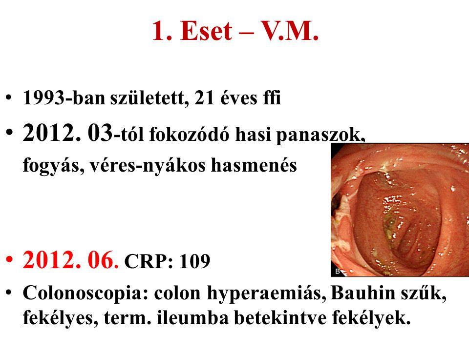 1. Eset – V.M. 2012. 03-tól fokozódó hasi panaszok, 2012. 06. CRP: 109