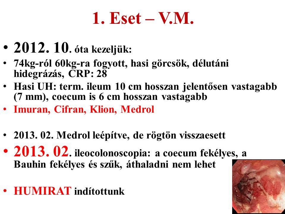 1. Eset – V.M. 2012. 10. óta kezeljük: 74kg-ról 60kg-ra fogyott, hasi görcsök, délutáni hidegrázás, CRP: 28.