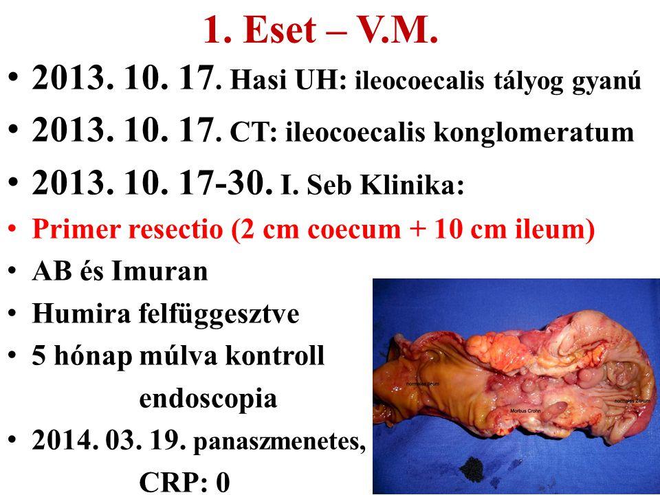 1. Eset – V.M. 2013. 10. 17. Hasi UH: ileocoecalis tályog gyanú