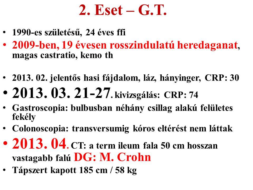 2. Eset – G.T. 2013. 03. 21-27. kivizsgálás: CRP: 74