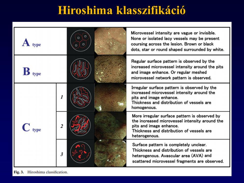 Hiroshima klasszifikáció