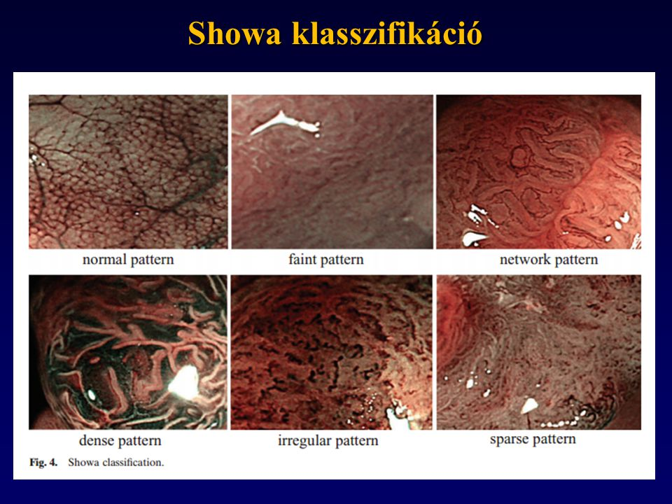 Showa klasszifikáció