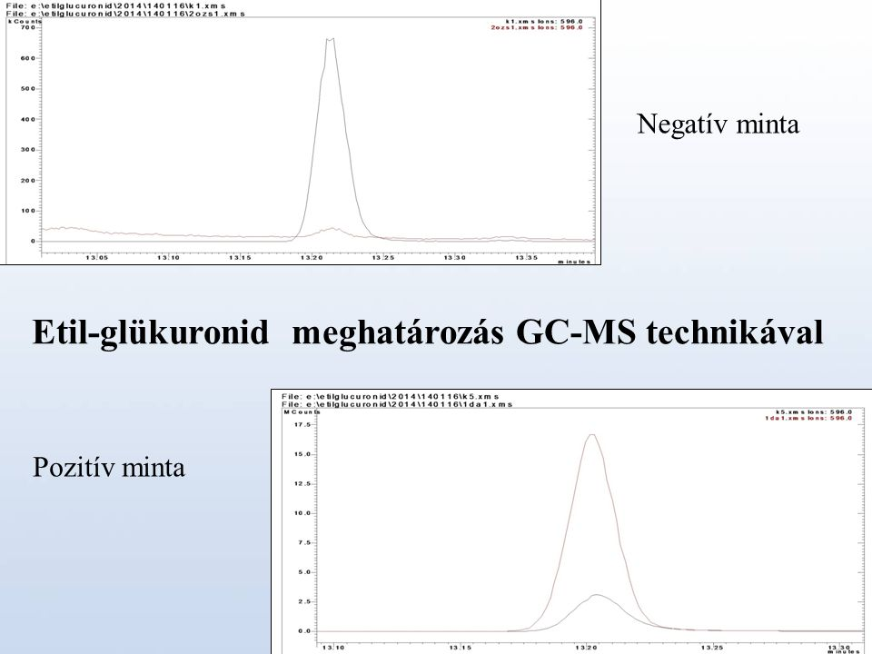 Etil-glükuronid meghatározás GC-MS technikával