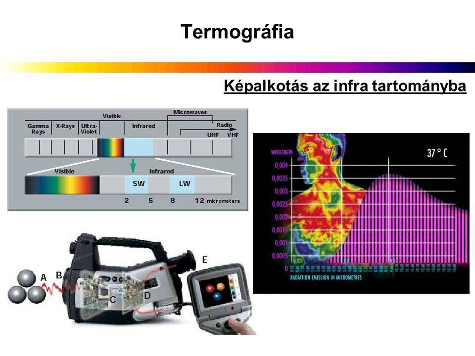Termográfia Képalkotás az infra tartományba