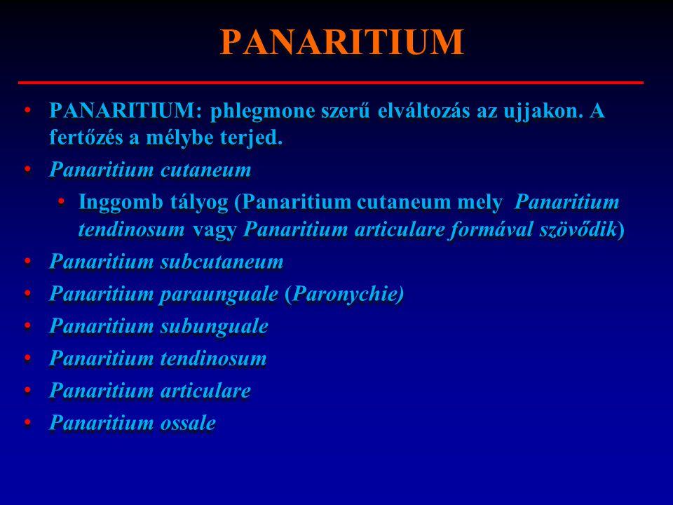 PANARITIUM PANARITIUM: phlegmone szerű elváltozás az ujjakon. A fertőzés a mélybe terjed. Panaritium cutaneum.