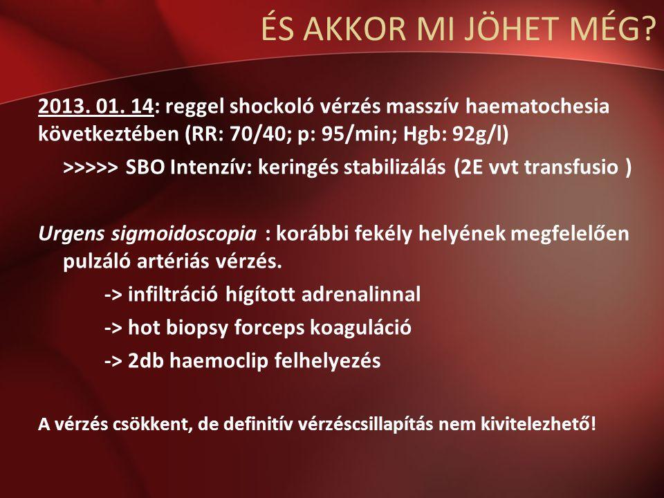 ÉS AKKOR MI JÖHET MÉG 2013. 01. 14: reggel shockoló vérzés masszív haematochesia következtében (RR: 70/40; p: 95/min; Hgb: 92g/l)