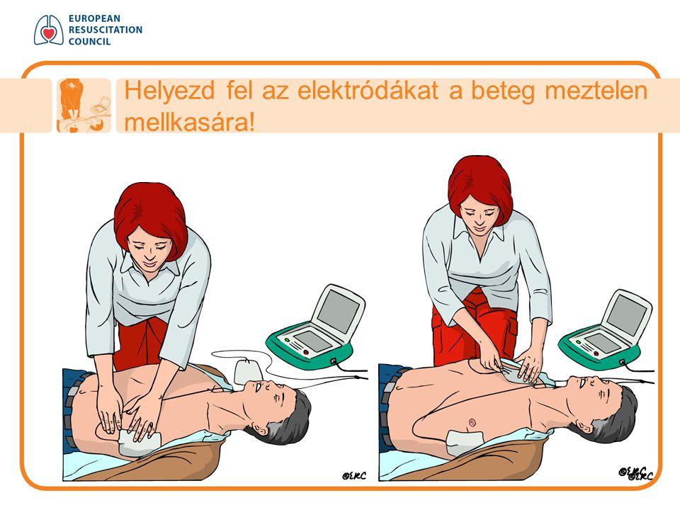 Helyezd fel az elektródákat a beteg meztelen mellkasára!