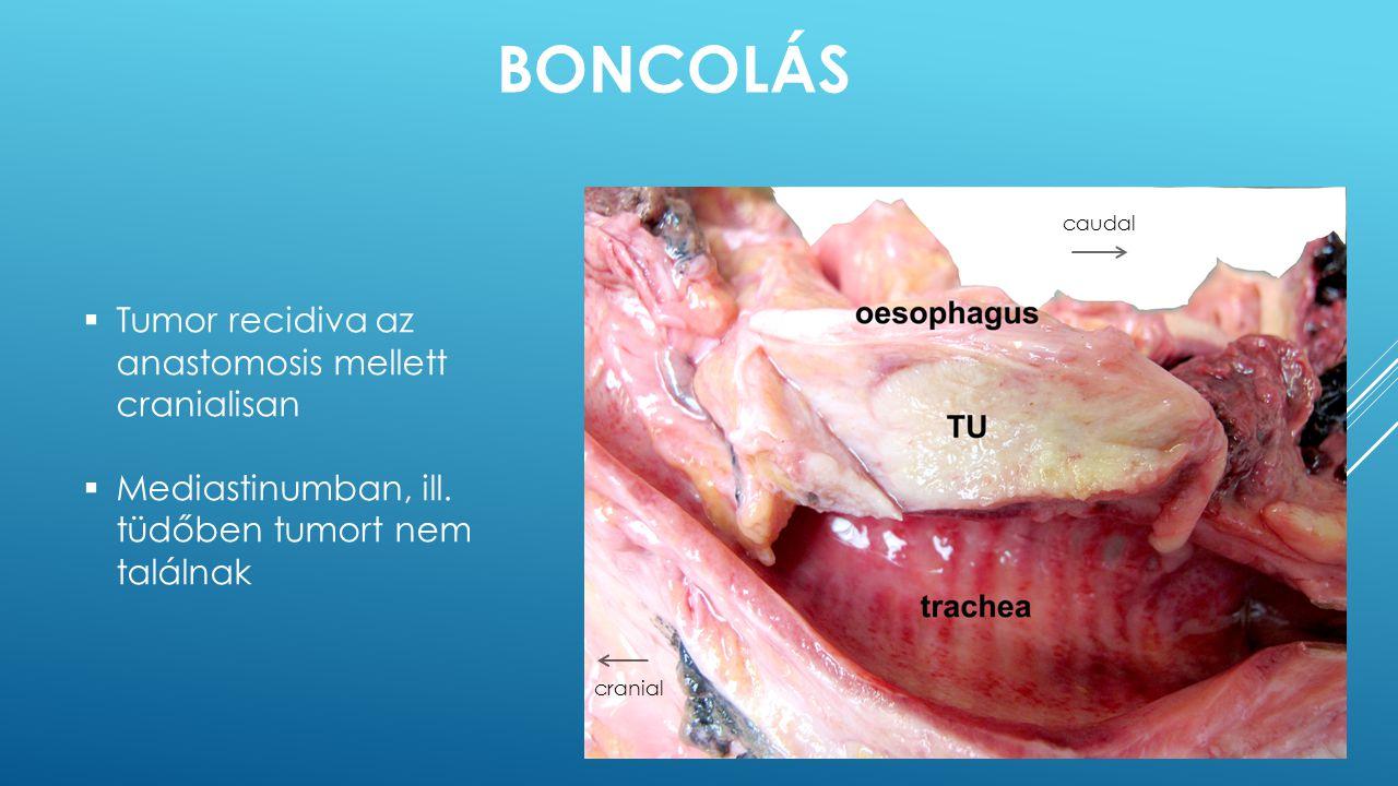 Boncolás Tumor recidiva az anastomosis mellett cranialisan