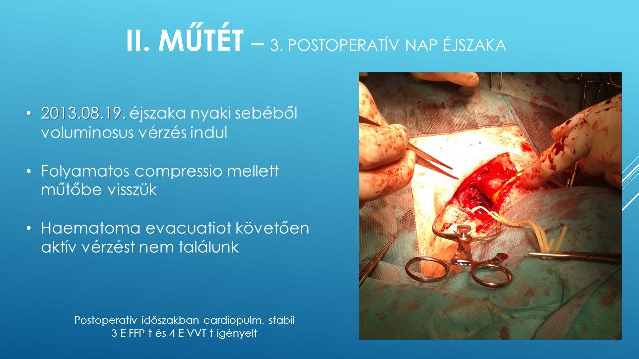 II. Műtét – 3. postoperatív nap éjszaka